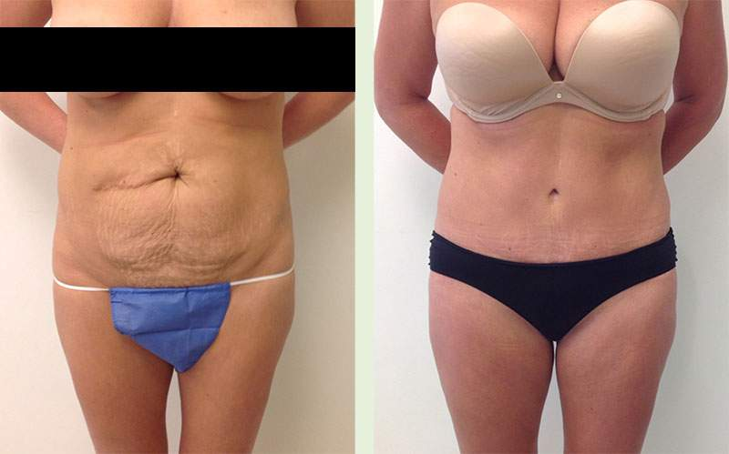 Real Female Patient Before and After Tummy Tuck Procedure