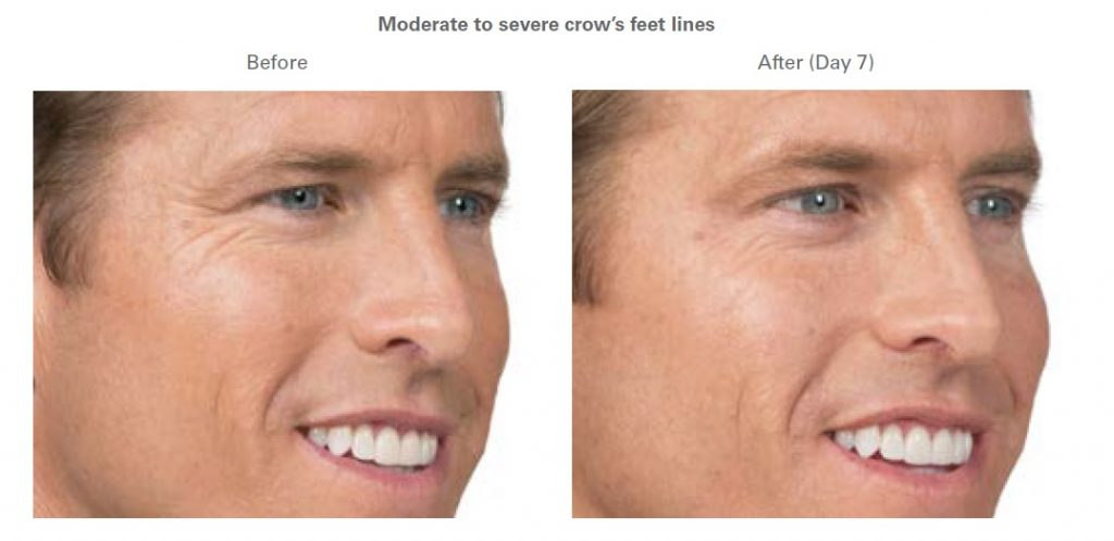 Male Patient Before and After Dermal Fillers