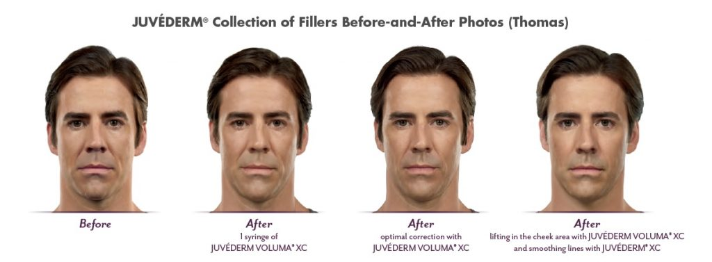 Male Patient Before and After Juvederm