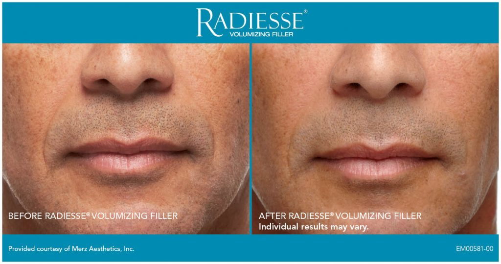 Radiesse Patient Before and After Mouth Male
