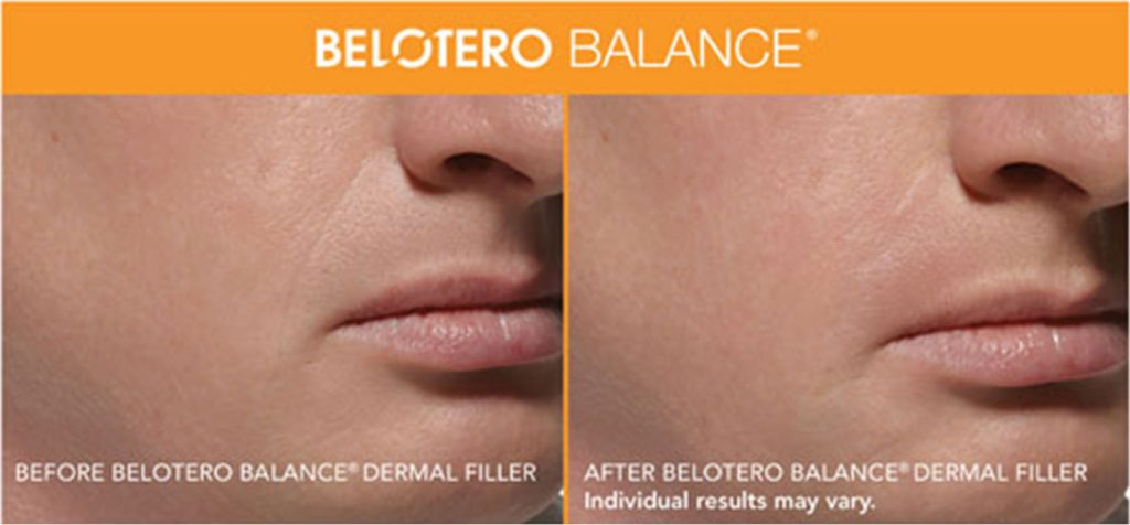 Belotero Patient Before and After Treatment Male Mouth