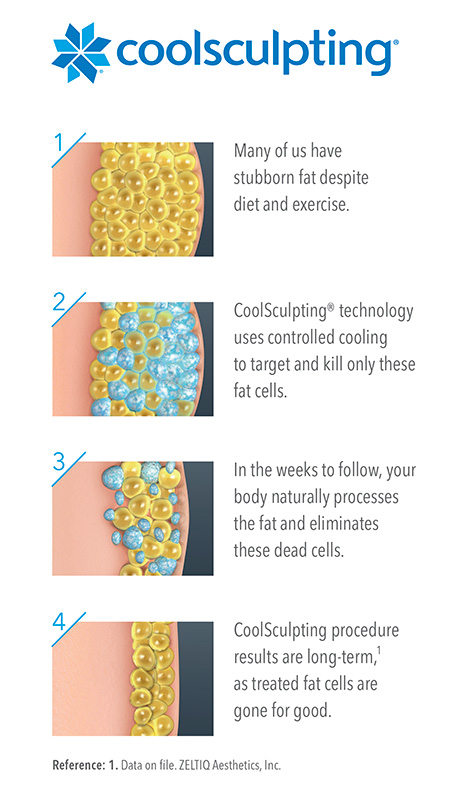 Stages of CoolSculpting Beneath the Skin