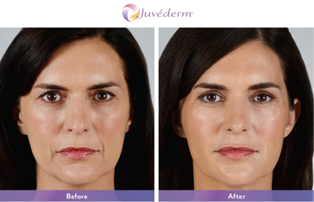 Juvederm Patient Before and After Treatment Female