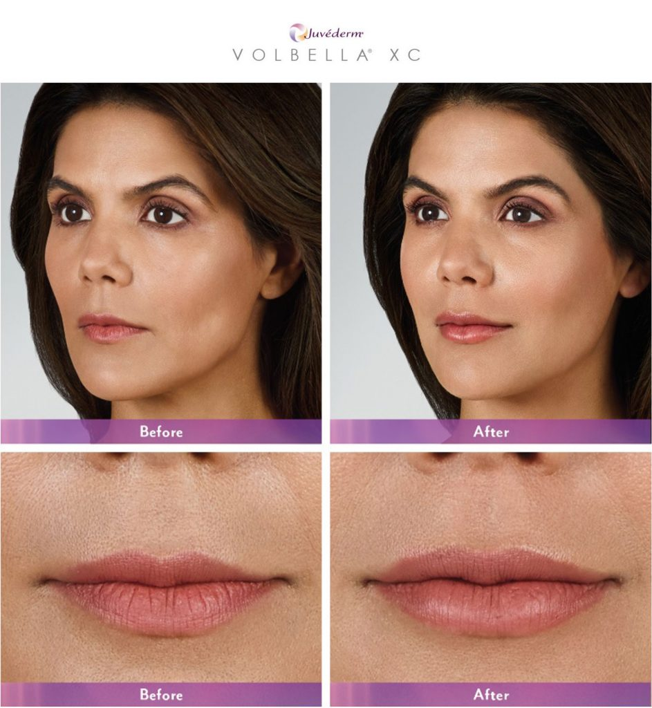 Juvederm Volbella Female Patient Before and After Mouth and Face