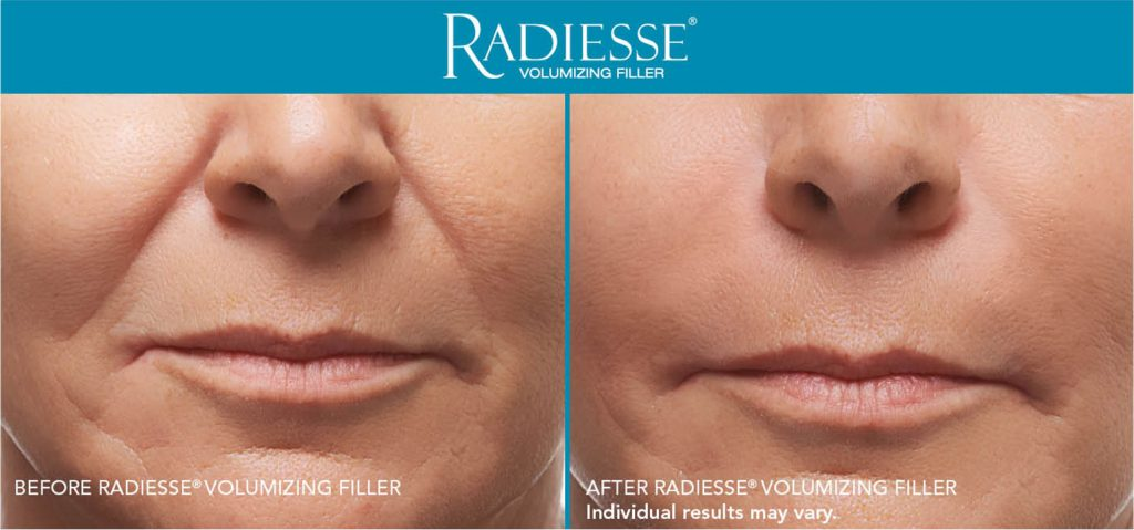 Radiesse Patient Before and After Treatment Mouth