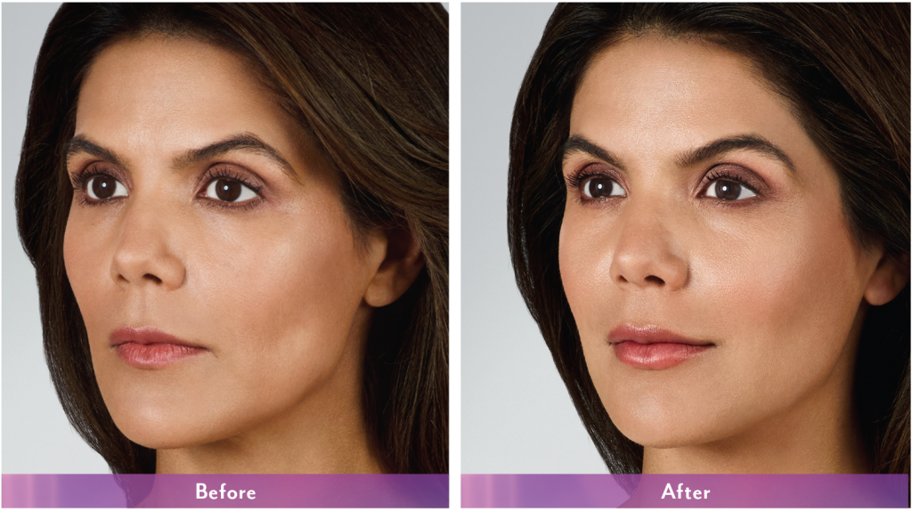 volbella-results-allergan