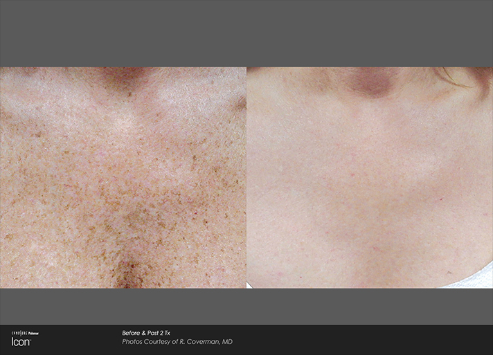 Chest Sun Damage Before and After Light Treatment