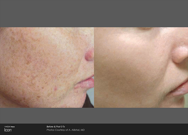Face Blemishes Before and After Light Treatment