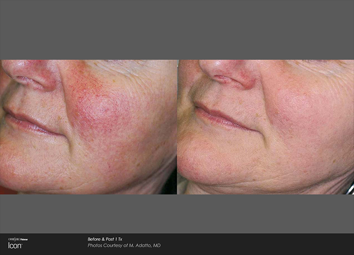 Cheek Redness Before and After Light Treatment