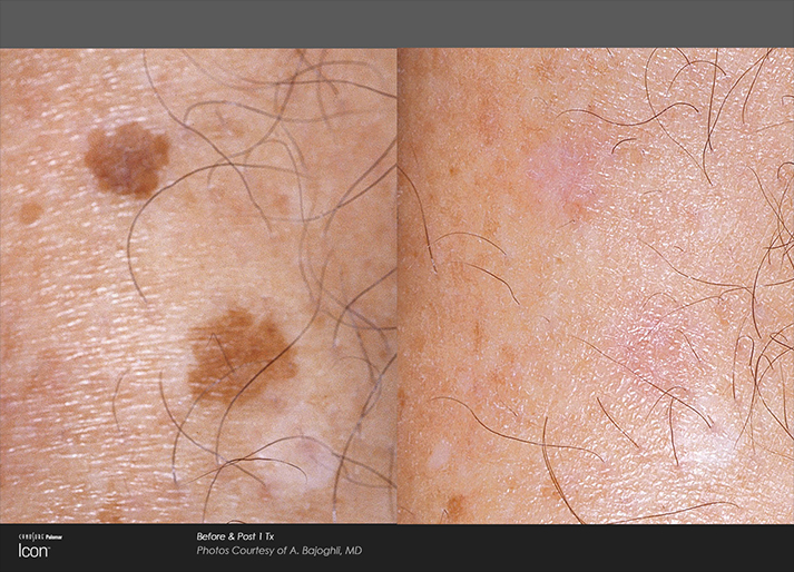 Skin Spots Before and After Light Treatment