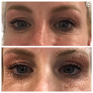 Upper and lower eyelids before and after Plasma Pen