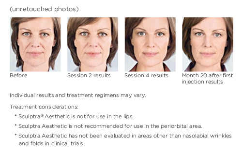 Unretouched photos of a woman before and after Sculptra Aesthetic