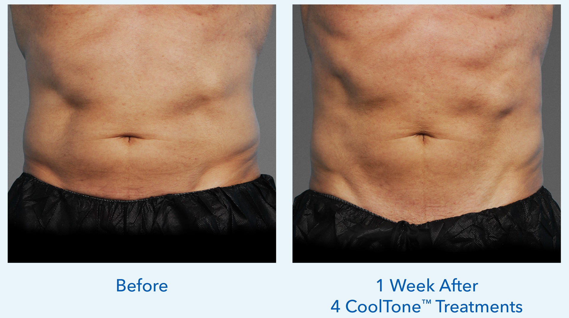 CoolTone man abdomen before and after