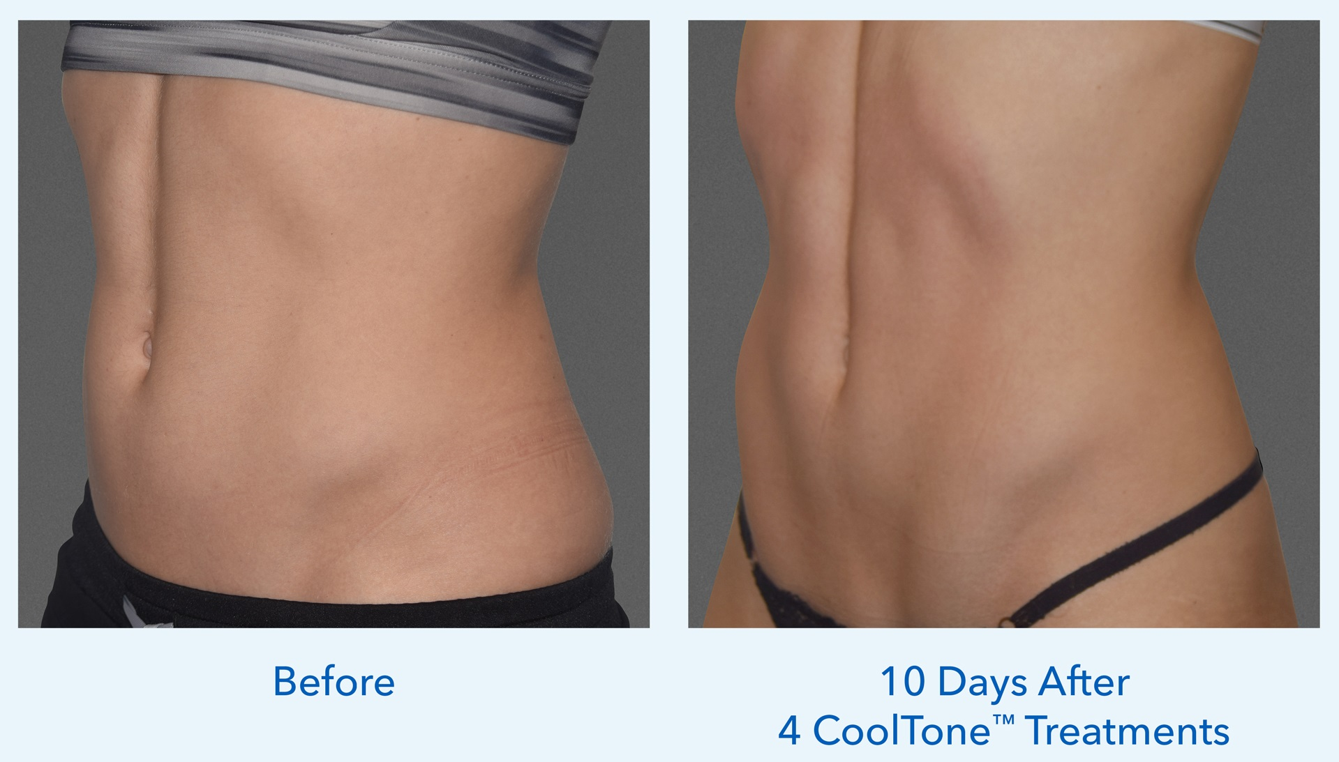 CoolTone woman's abdomen before and after