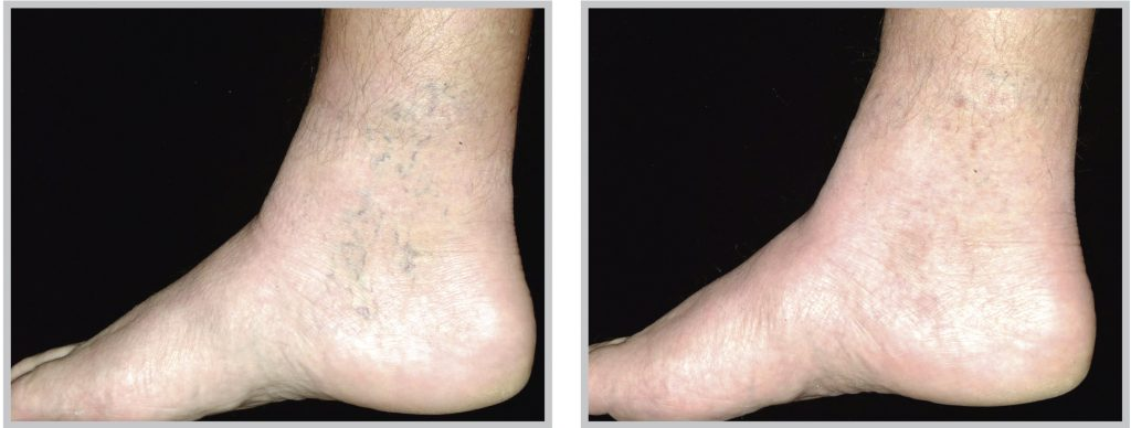 before and after vascular laser treatment foot and ankle