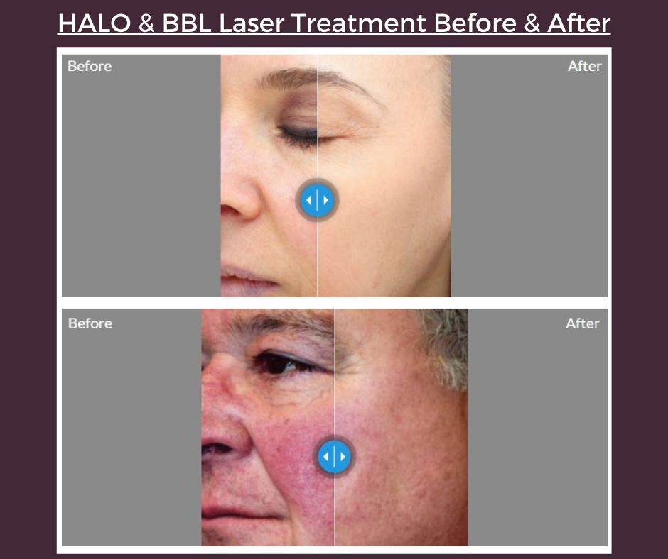 Visit our before and after gallery to see real patient results.